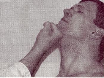 Особенности развития чим небезпечні удара в челюсть это скучно