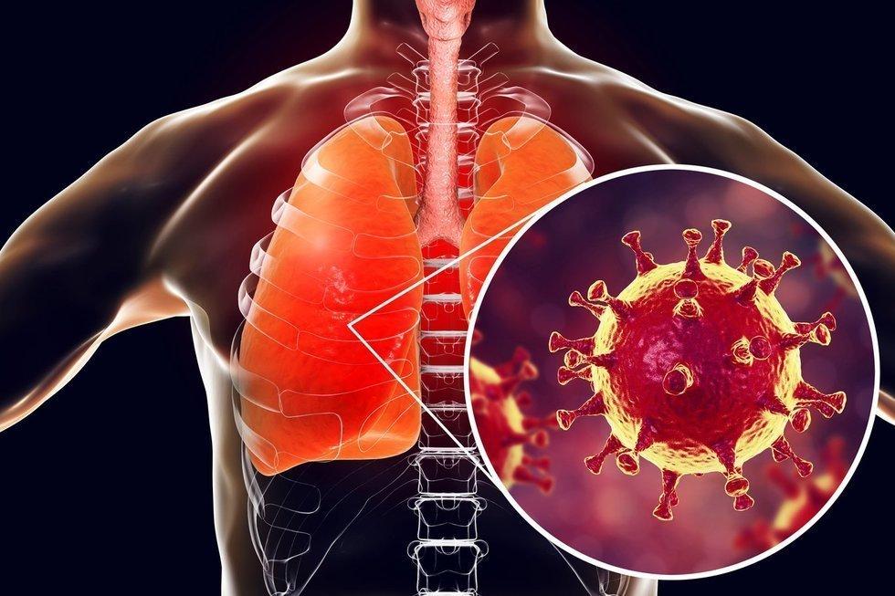 В Саратове официально зарегистрирован второй случай заболевания коронавирусной инфекцией